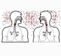 Лечение туберкулеза и роль медицинской сестры